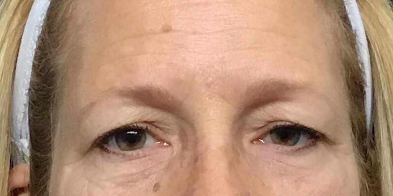 Ultherapy Brow Lift Before