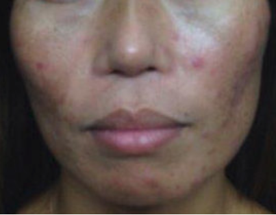 Microneedling Before and After Pictures Jupiter and Port St Lucie, FL
