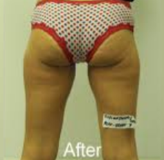 Cellulite Treatment Before and After Pictures Jupiter and Port St Lucie, FL