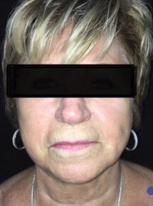 Kybella Before and After Pictures Jupiter and Port St Lucie, FL