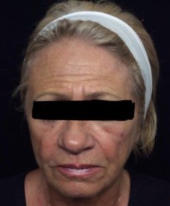 Sculptra Before and After Pictures Jupiter and Port St Lucie, FL